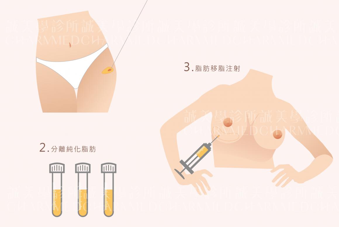 自體脂肪隆乳_工作區域 1