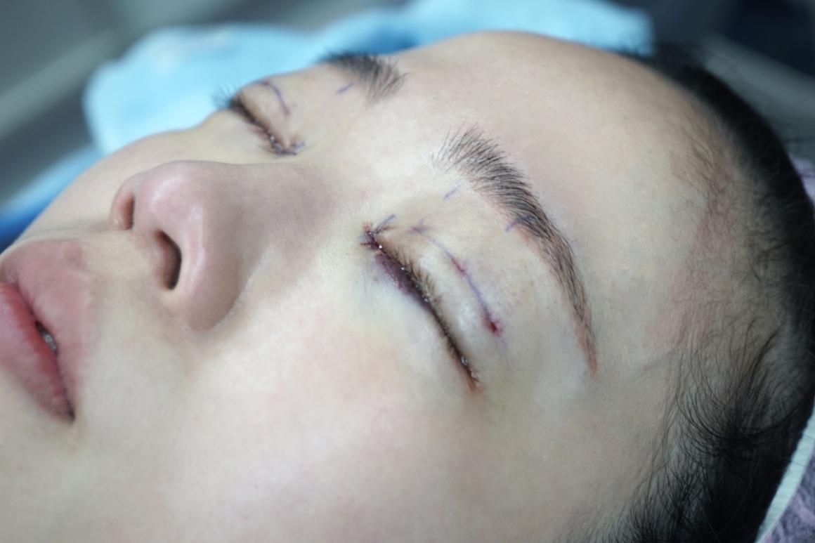 蔡青穎醫師-縫雙眼皮09
