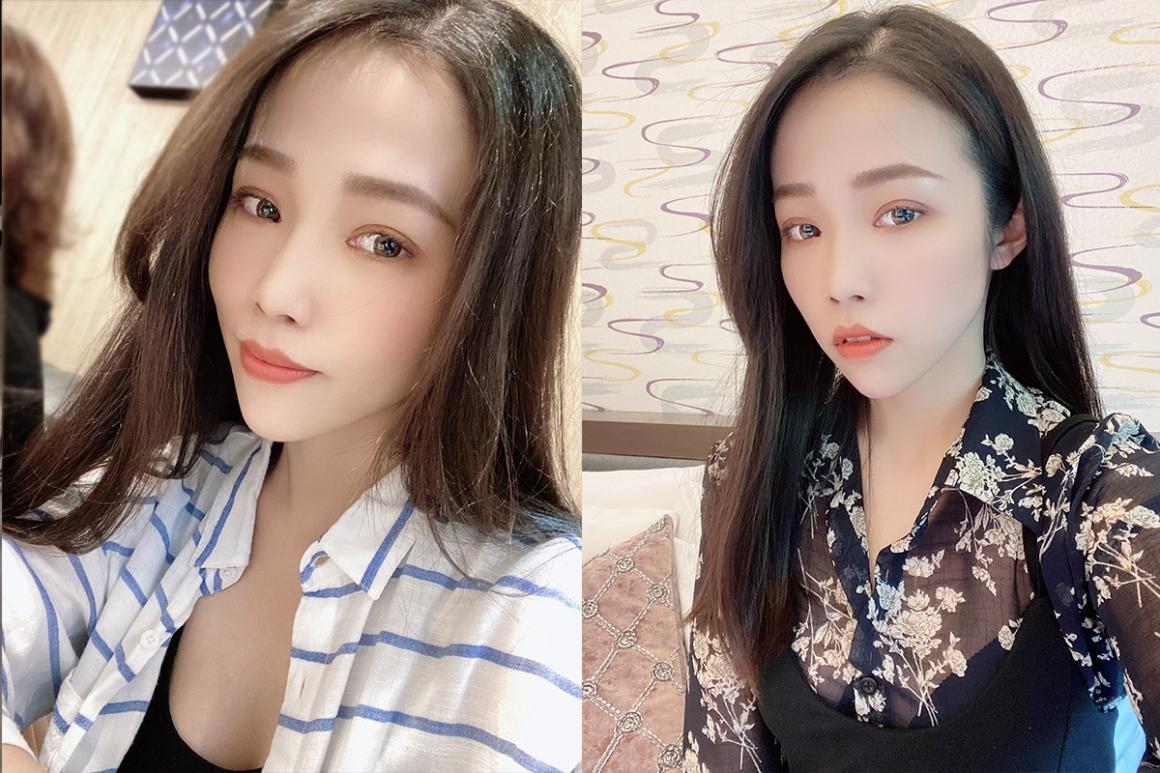蔡青穎醫師-縫雙眼皮12