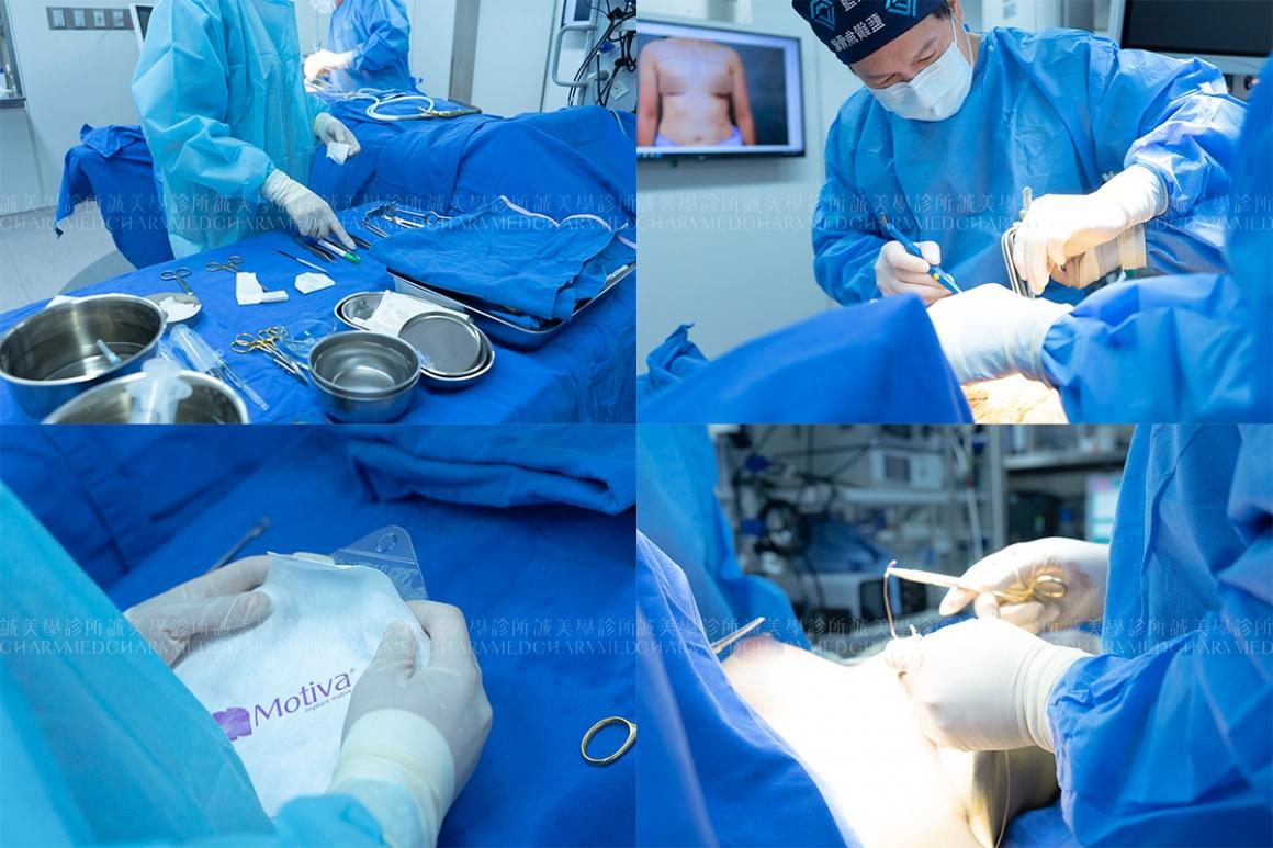 魔滴義乳隆乳手術01