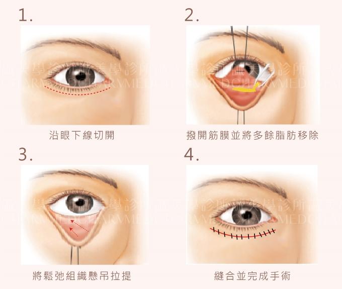 眼袋外開手術