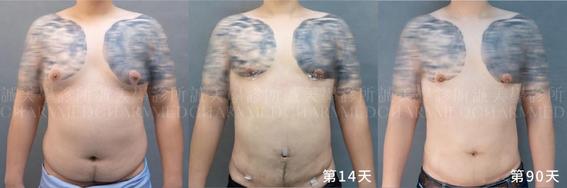 威塑抽脂-男性女乳01