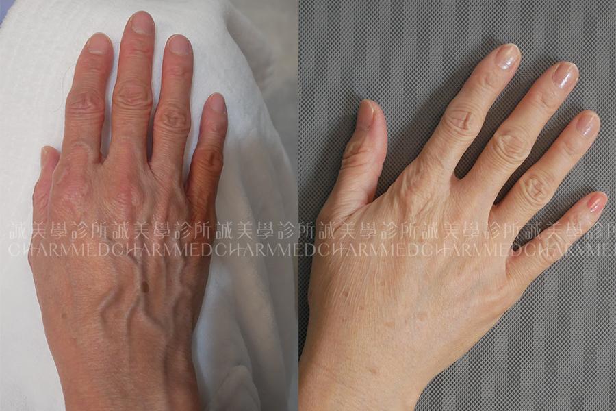 自體脂肪-雞爪手01