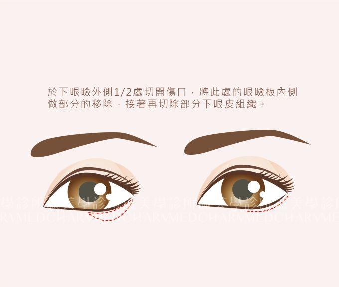 外開眼瞼下置手術