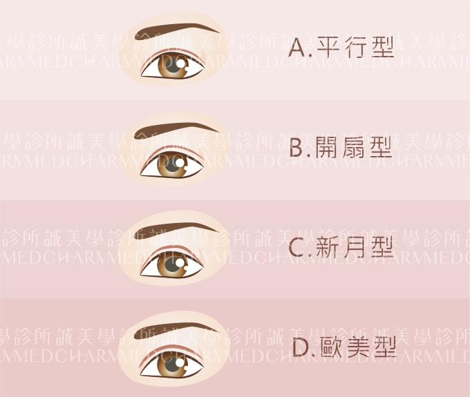 雙眼皮的類型