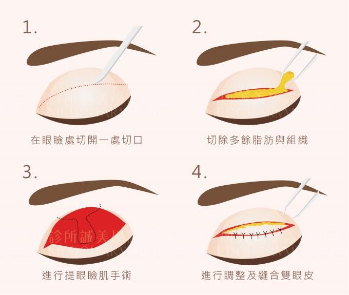 日式釘書針雙眼皮
