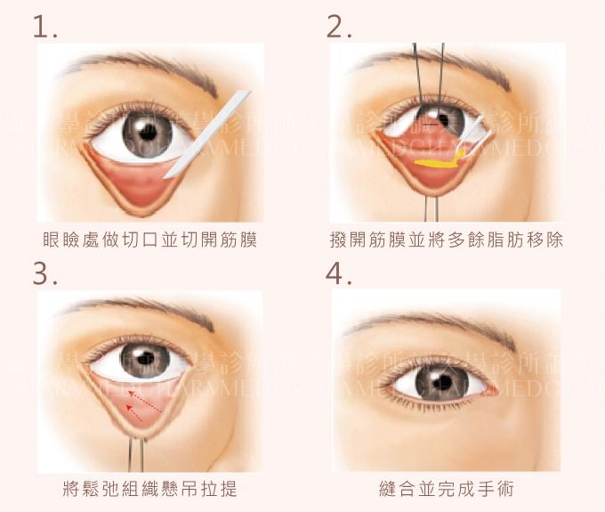 眼袋內開手術方式