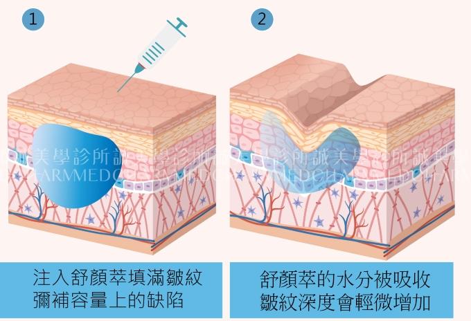 3D聚左旋乳酸