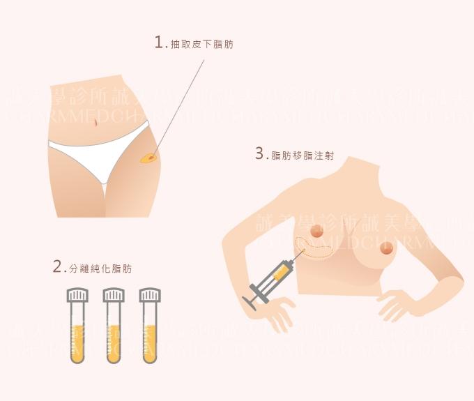 自體脂肪隆乳手術