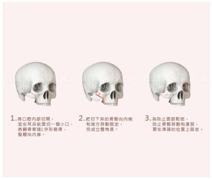 顴骨L形削骨手術