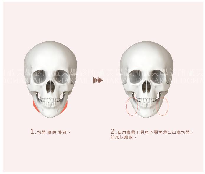下頷骨削骨手術