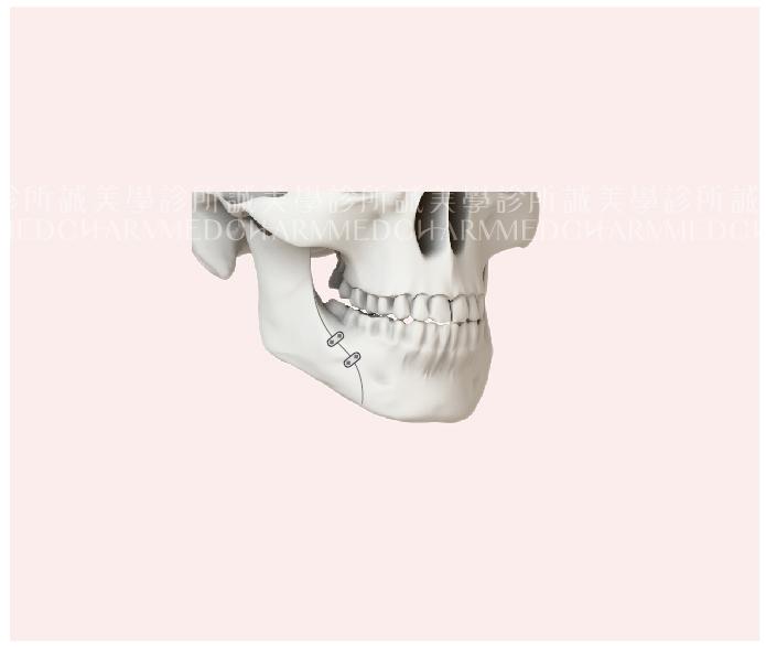 下顎骨矢狀劈開術(BSSO)