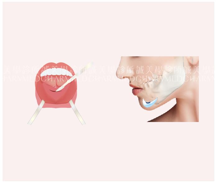 內開式墊下巴手術
