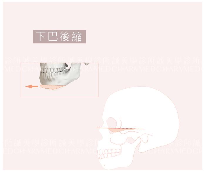 下巴後縮手術