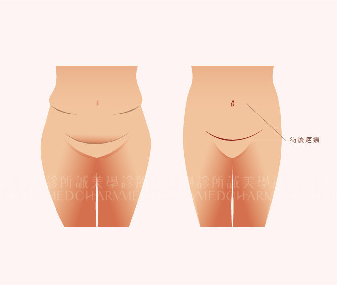 大腹拉(傳統腹拉)手術