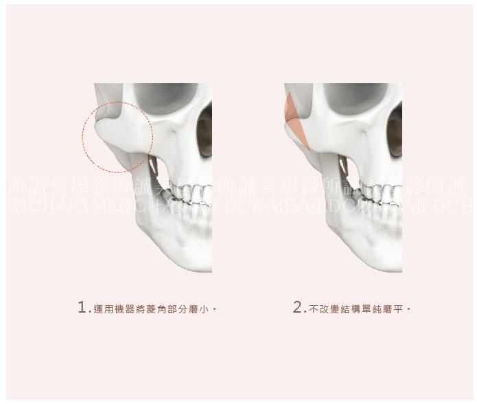顴骨磨骨手術
