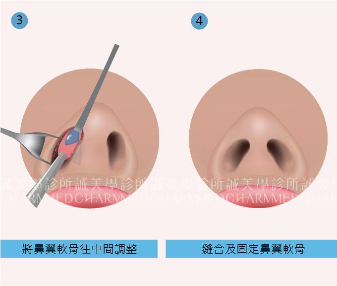 鼻頭整形步驟二