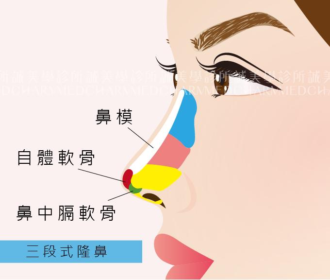 三段式隆鼻