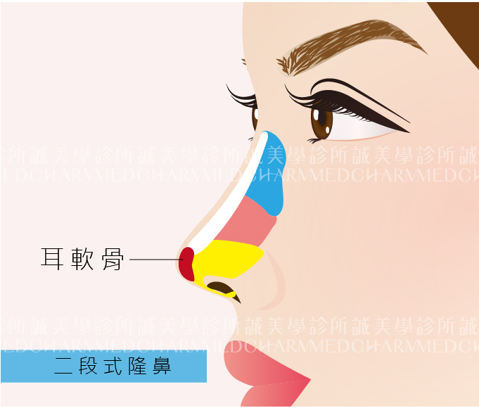 二段式隆鼻