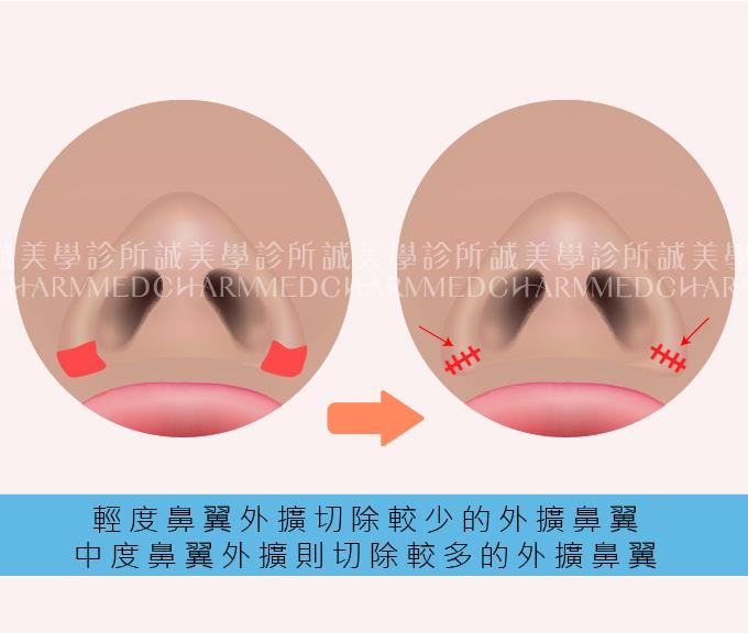 縮鼻翼手術