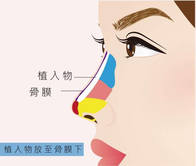 內視鏡隆乳手術