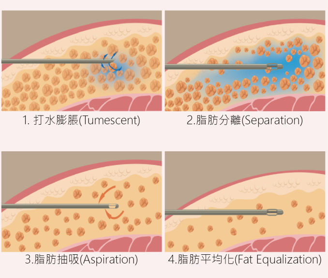 Vaser威塑超音波抽脂手術原理
