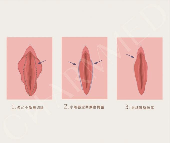 陰唇美化手術