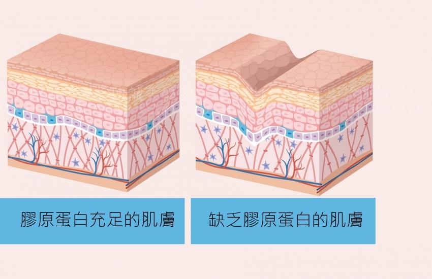 双美膚力原膠原蛋白植入劑