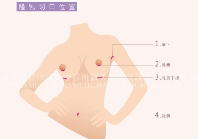 隆乳切口位置手術方式