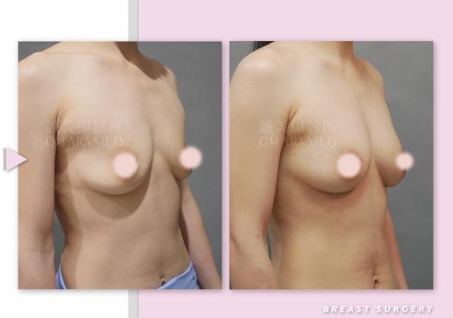 自體脂肪抽脂補胸+縮乳頭