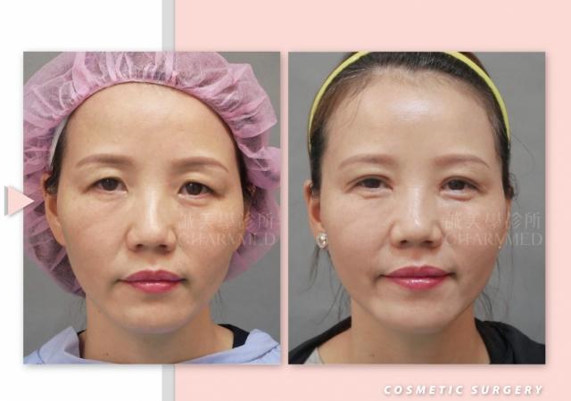 眉上切開眼頭洢蓮絲M法令-臉手術