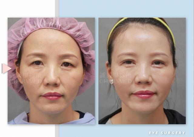 眉上切開眼頭洢蓮絲M法令-眼手術