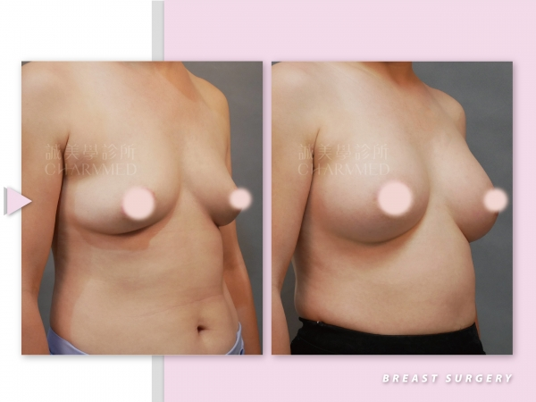 水滴矽膠義乳(隆乳手術)