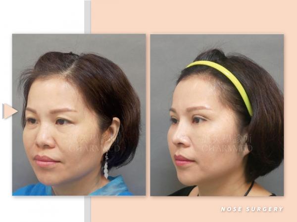 三段結構式隆鼻手術