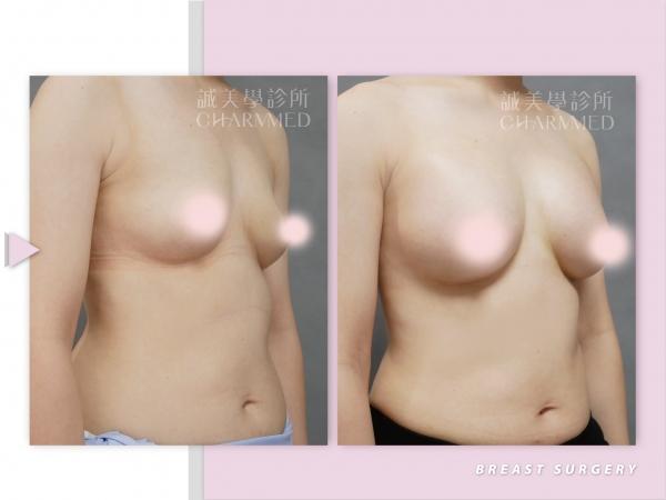 圓盤矽膠義乳(隆乳手術)
