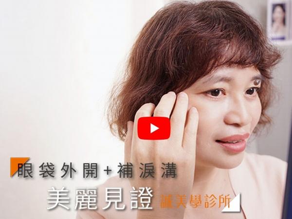 誠美學診所蔡青穎醫師 - 美麗見證 – 眼袋外開+補淚溝