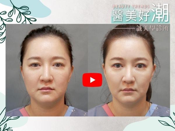 【誠美學診所 醫美好潮—肝得健/卡尼丁 中胚層注射】