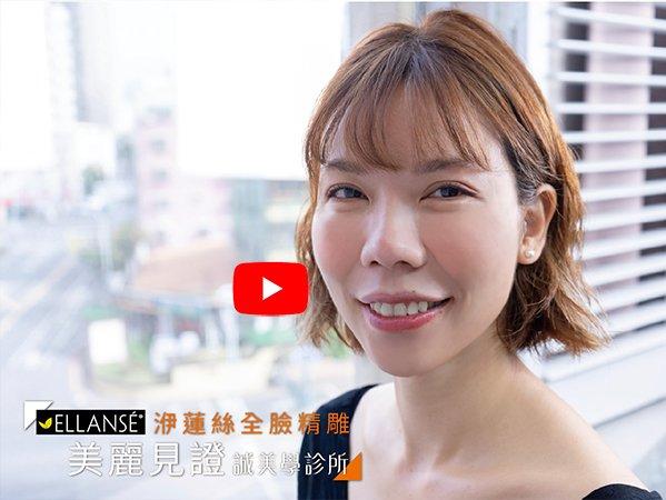 誠美學診所 張瑋庭醫師 – 美麗見證–洢蓮絲全臉精雕